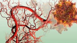الأوعية الدموية المتولدة.. الحليف الإستراتيجي للأورام السرطانية